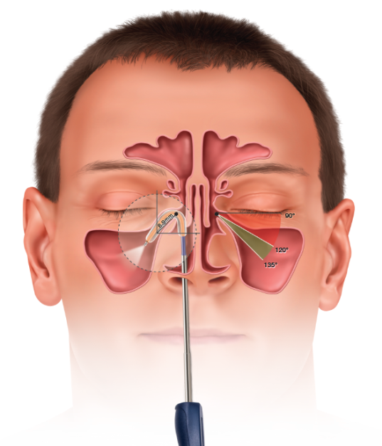 In-Clinic Balloon Dilation procedure